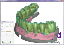 b_220_160_16777215_0___images_stories_products_software_exocad_exocad_dental_cad_4